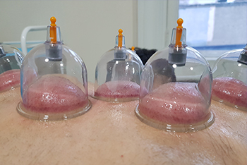 Miracles of Hijama Cupping Therapy